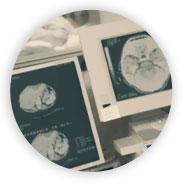 Tomografia | Dr. André Potenza